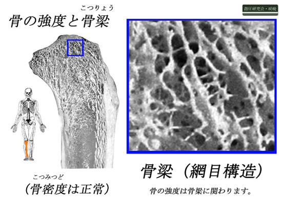 骨梁の構造